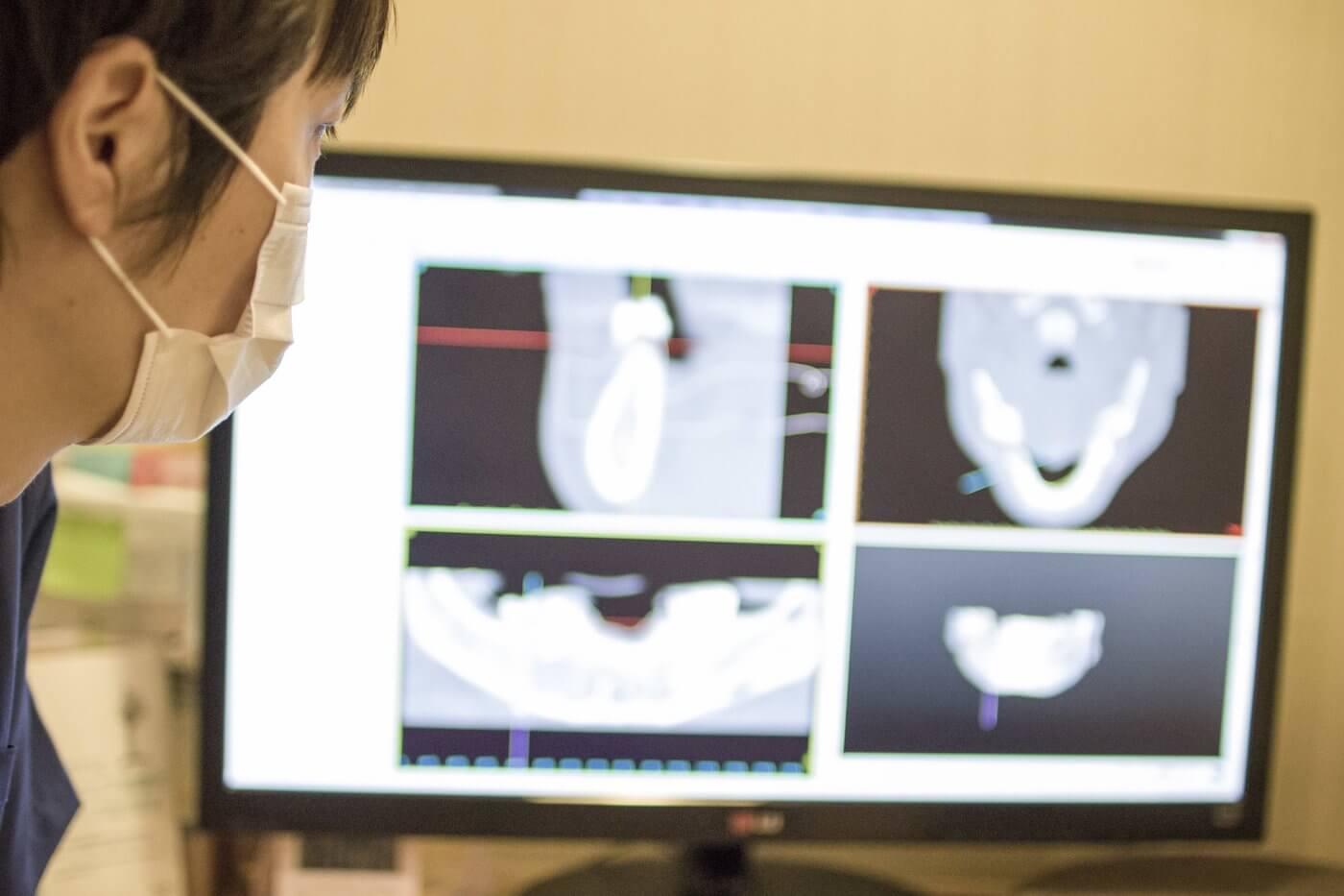 インプラント治療の安全対策をさらに詳しく